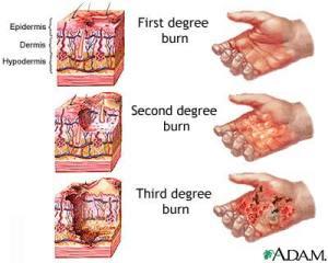Burn Degree