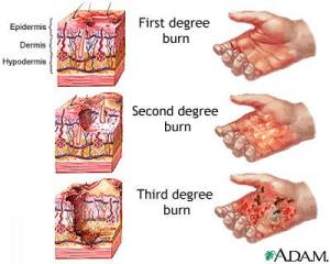 Burn Degree