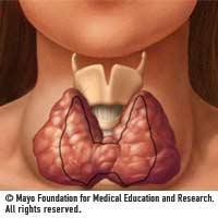 Thyroid_goiternormal