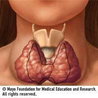 Thyroid_goiternormal